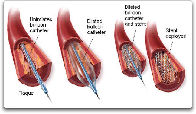 stent insertion