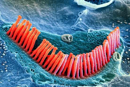 Stereocilia on an auditory hair cell.  Pseudocolored scanning EM image. Image: Edwin W. Rubel