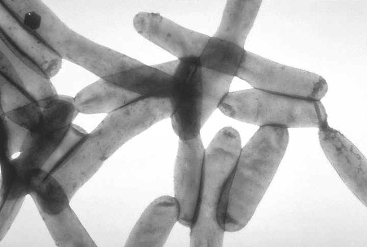 legionella pneumophila, public domain image, source CDC Public Health Image Library (CDC Phil #1187)