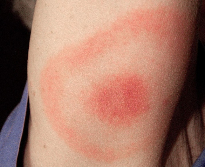 "This ""classic"" bull's-eye rash is also called erythema migrans. A rash caused by Lyme does not always look like this and approximately 25% of those infected with Lyme disease may have no rash."